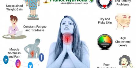 10 Foods To Avoid If You Have Hypothyroidism