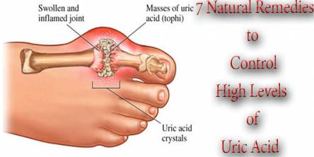 7 Natural Remedies to Control High Levels of Uric Acid