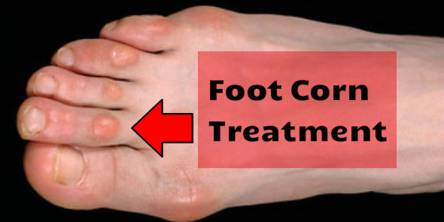 How to Treat Foot Corn With Herbal Remedies
