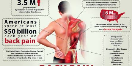 Lower Back Pain - Everything You Want to Know