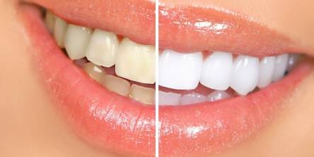 Teeth Whitening, Whiten Your Teeth