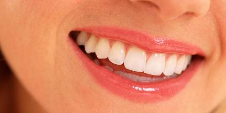 Oral Health for Teeth Whitening