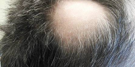 5 Different Hair Loss Treatments