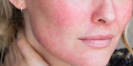 7 Common Reasons for Red Face That May Surprise You