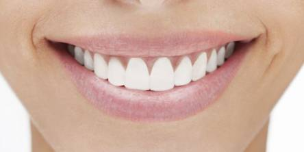 smile teeth white