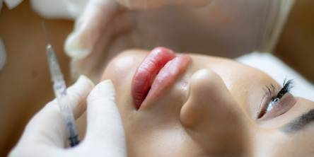 Why Should I Try Dermal Fillers For My Healthier Skin