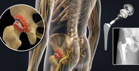 Gear Up For Active Life With Total Hip Replacement
