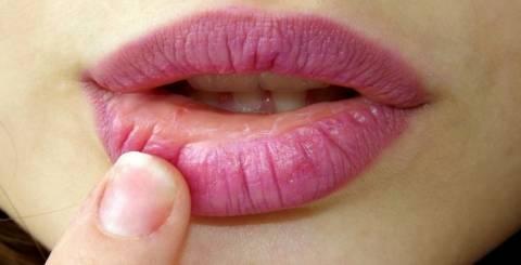 dry lip causes