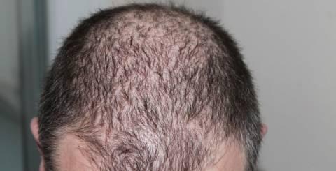 Hair Loss Treatment