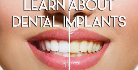 Smile Makeover, Dental Implants