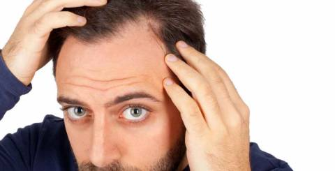Hair Implants, Hair implants in Turkey