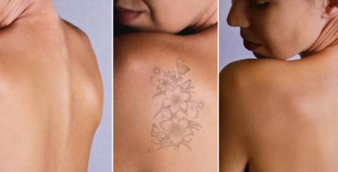 Why Laser Tattoo Removal Is Smarter Than Other Methods