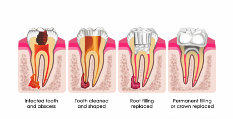 Root Canal Treatment Langley BC