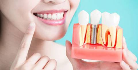 7 Reasons Why Dental Implants Are Best Solutions for Missing Teeth